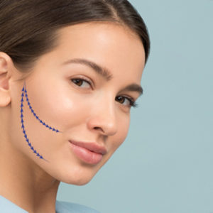 viso-donna-indicazioni-intervento-chirurgico
